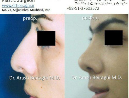 عمل بینی