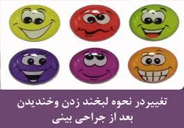تاثیر عمل بینی در لب و لبخند بسیار است