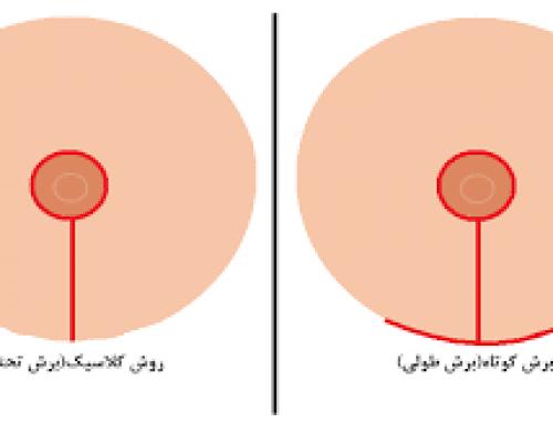 روشهای جراحی کوچک کردن سینه