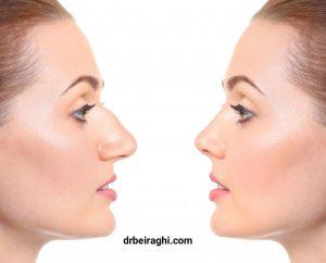 چه تفاوتی میان بینی های گوشتی و استخوانی وجود دارد؟