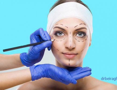 عمل پرطرفدار جراحی بینی در مشهد