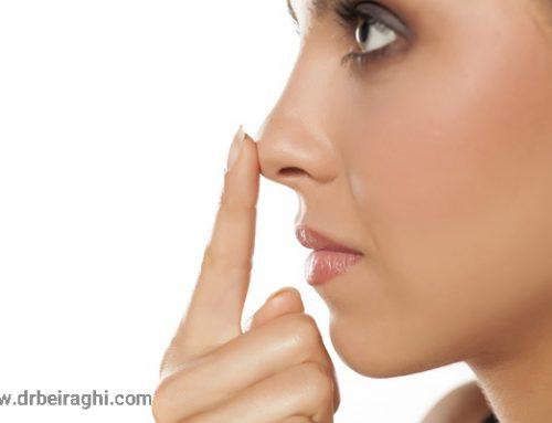 عوارض جراحی بینی یا رینوپلاستی را بشناسید