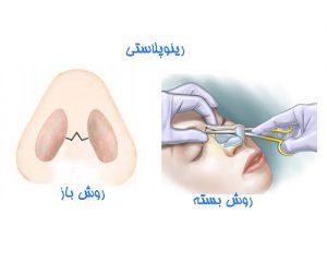 بینی عمل شده به دو روش بسته و باز