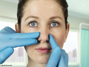 مراقبت های پس از عمل شکستگی بینی
