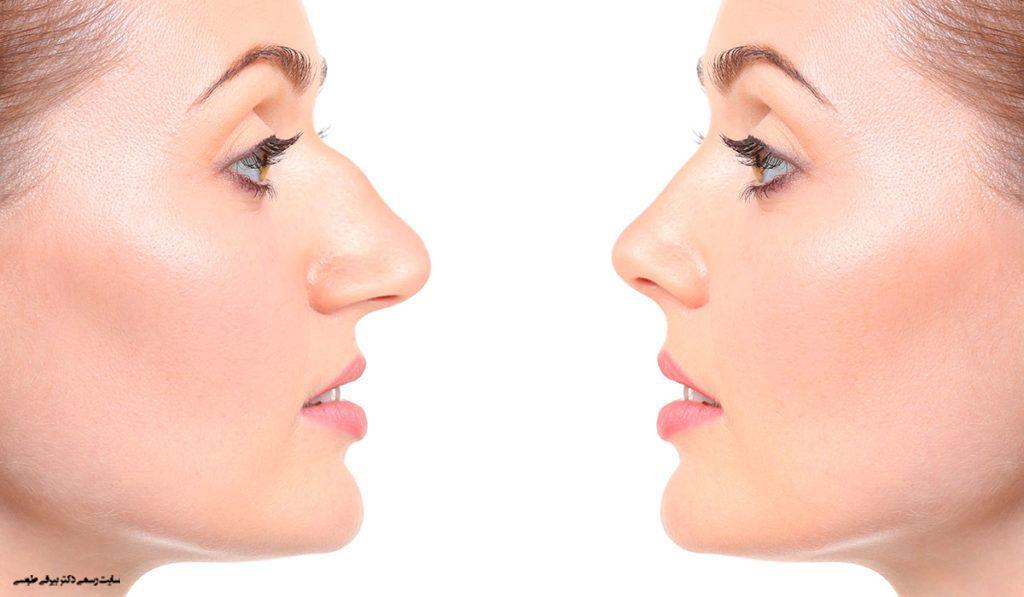 بینی قوزدار و بینی عمل شده