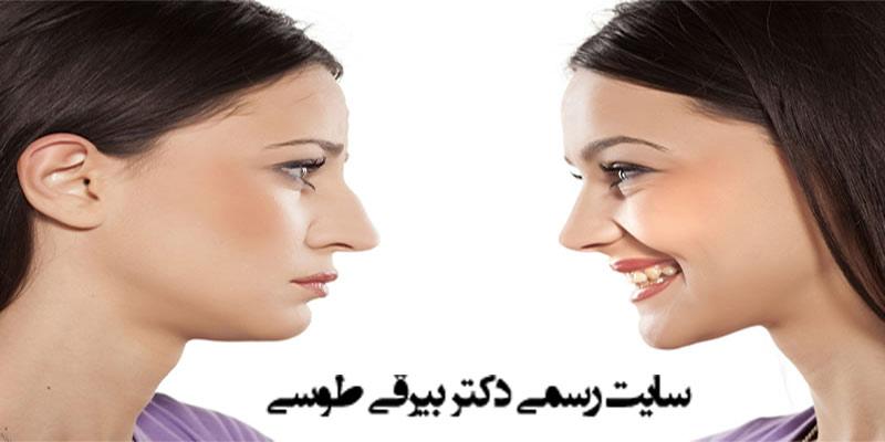 عمل زیبایی بینی و عمل پولیپ بینی بطور همزمان