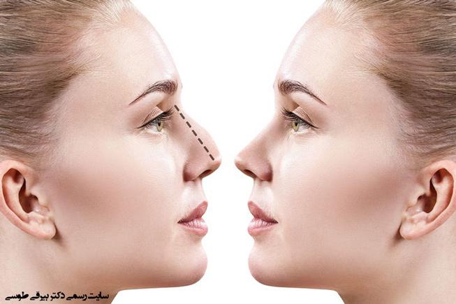 انحراف بینی و بینی عمل شده