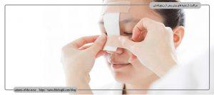 مراقبت از بخیه بینی پس از رینوپلاستی