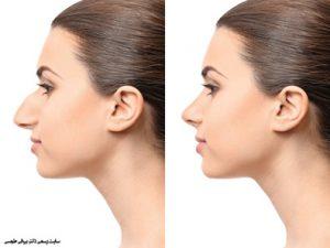 مراقبت های قبل و بعد عمل بینی