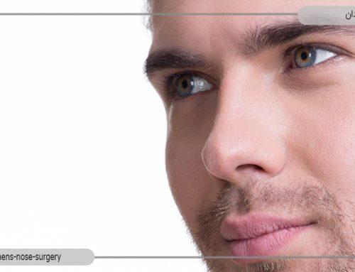 عمل بینی مردان چه تفاوتی با عمل بینی زنان دارد؟