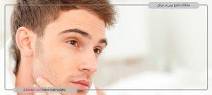 مشکلات شایع بینی مردان