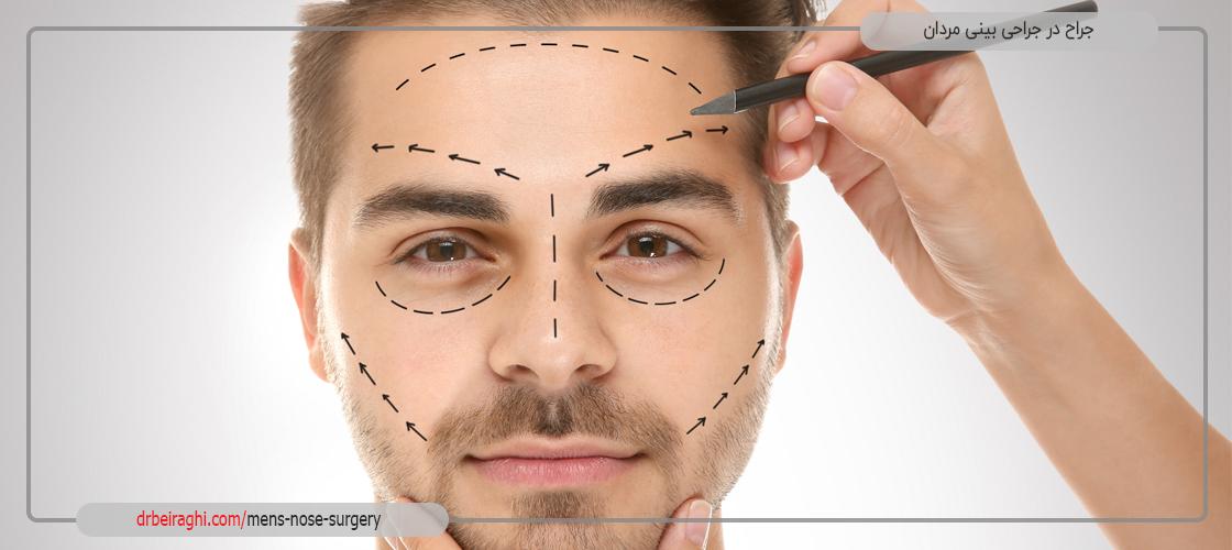 جراح در عمل بینی مردان