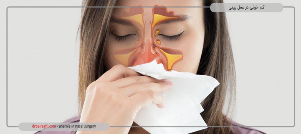 افراد برای دلایل زیادی، دست به جراحی بینی میزنند