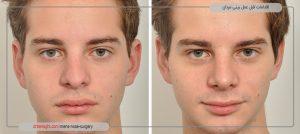 اقدامات قبل عمل بینی مردا