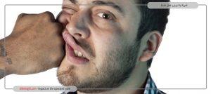 ضربه به بینی عمل شده