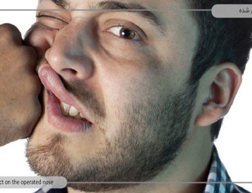پس از وارد شدن ضربه به بینی عمل شده چه کاری باید انجام داد؟