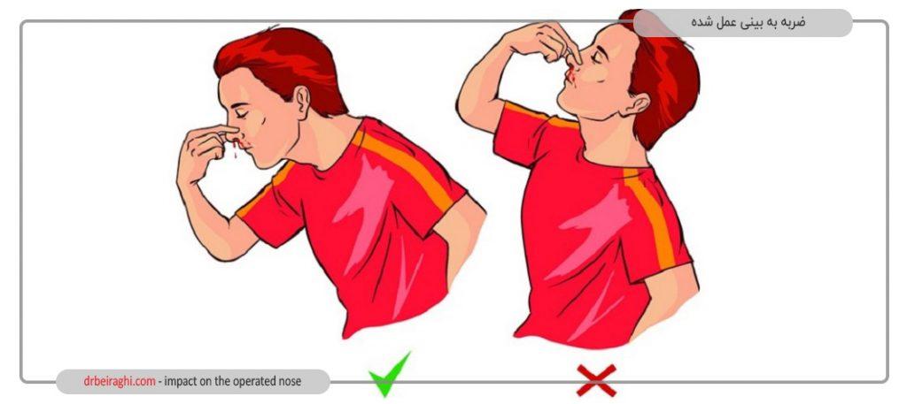در صورت خونریزی بینی باید سر خود را پایین بگیرید