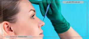 عمل جراحی شاخک های بینی