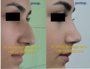 جراحی بینی مشهد