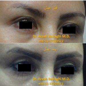 نمونه عمل جراحی زیبایی پلک