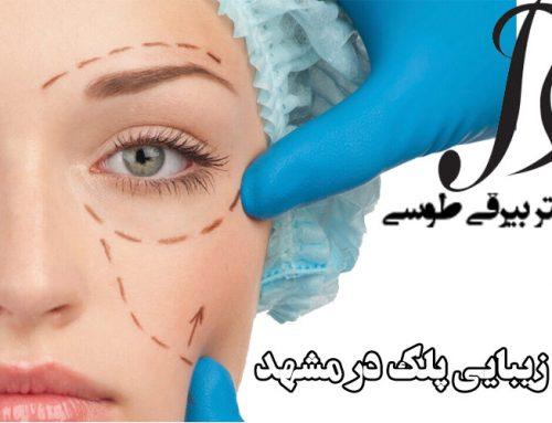 بهترین جراح زیبایی پلک در مشهد