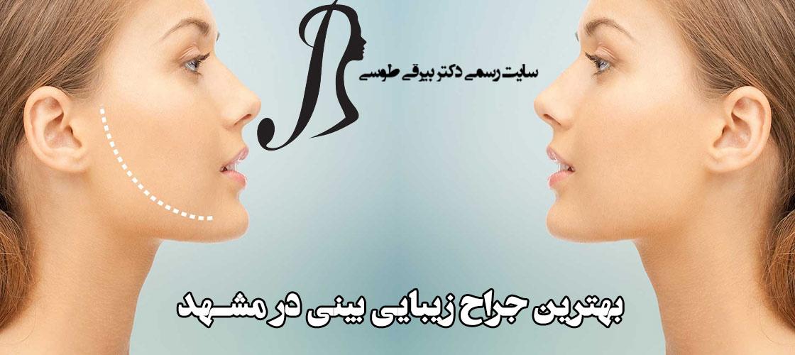 بهترین جراح زیبایی بینی در مشهد