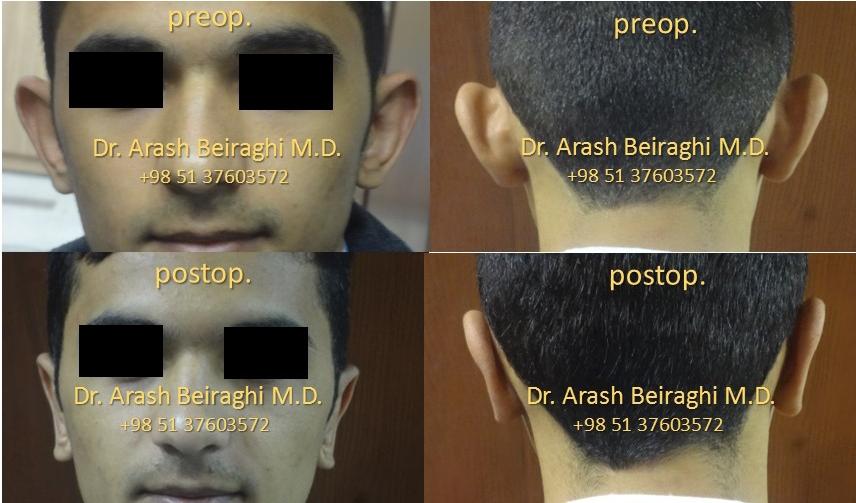نمونه عمل جراحی زیبایی گوش