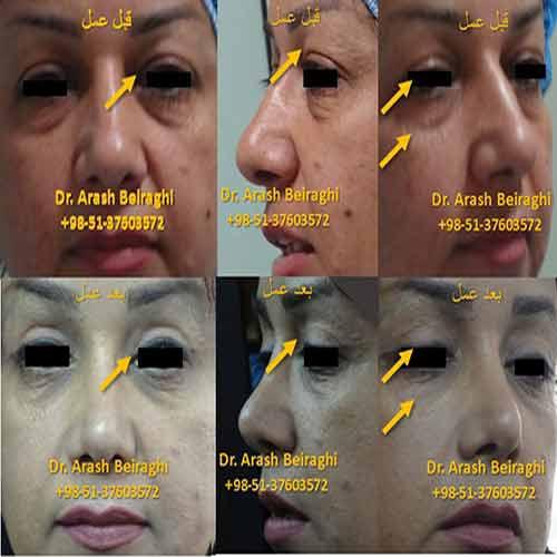 عمل جراحی افتادگی پلک در مشهد
