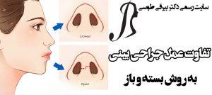 تفاوت عمل جراحی بینی به روش بسته و باز
