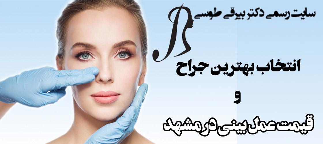قیمت عمل بینی در مشهد