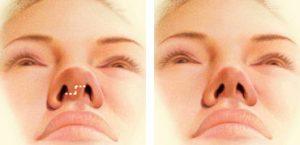 روشهای جراحی بینی