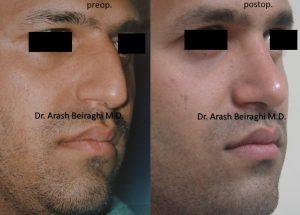 عمل بینی مردانه در مشهد