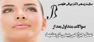 عمل جراحی بینی در مشهد