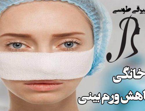 روش های خانگی کاهش ورم بینی بعد از عمل زیبایی بینی