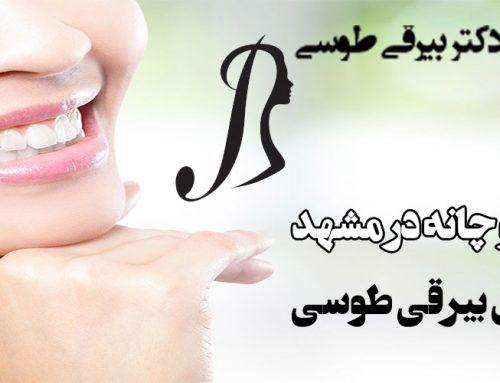 پروتز فک و چانه در مشهد با دکتر آرش بیرقی طوسی