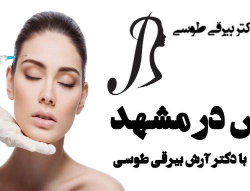 بوتاکس در مشهد با دکتر آرش بیرقی طوسی