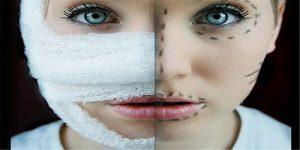عوارض عمومی عمل بینی