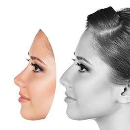 جراحی بینی استخوانی | قوز روی بینی استخوانی