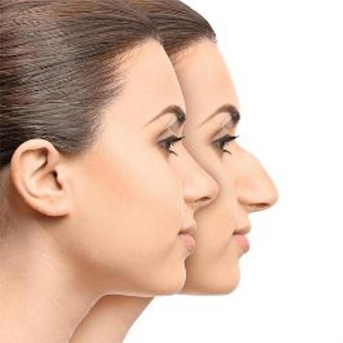 جراحی بینی استخوانی ، مشخصه های بینی استخوانی