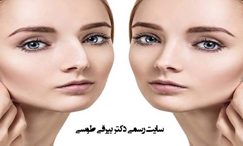 مدت زمان عمل بینی استخوانی